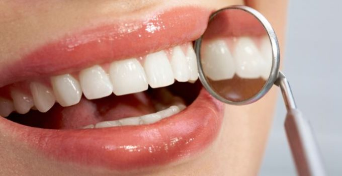 dientes-sin-rastro