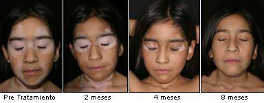 tratamiento-vitiligo