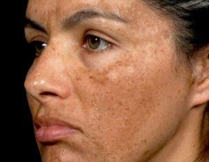 mujer con melasma