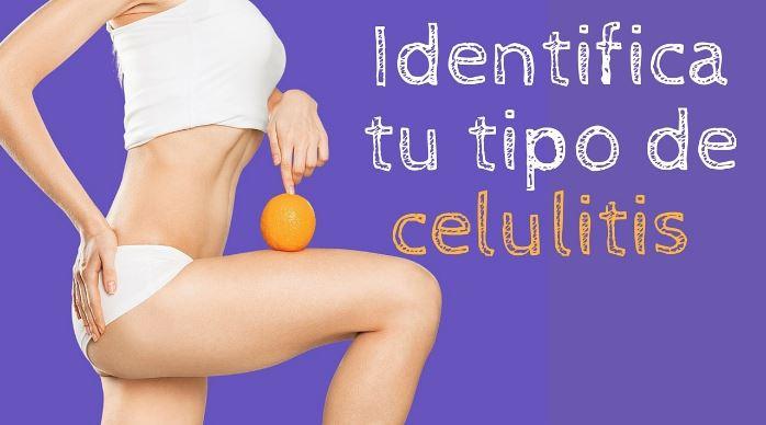 tipos de celulitis