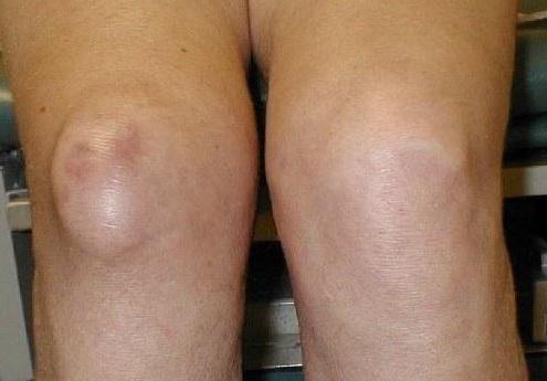 bursitis como causa del ardor de rodilla o parestesia