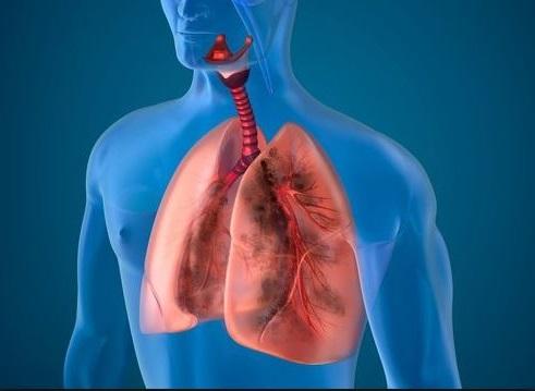 10 Ingredientes Naturales Que Purifican Los Pulmones De Un Fumador