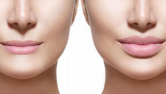 como aumentar los labios de forma natural