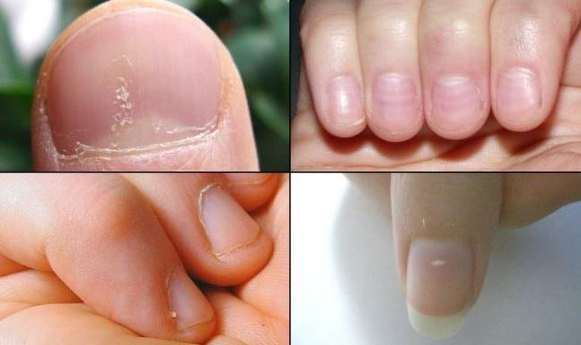 el color y la forma de las uñas pueden indicarnos una enfermedad
