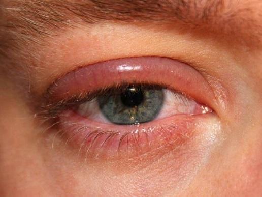 la blefaritis puede provocar latidos en el ojo