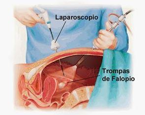 la cirugia con laparoscopia para eliminar el embarazo ectopico