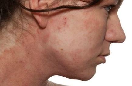 si tienes dermatitis atopica o psoriasis acude a tu medico y puede que te de una crema para tratarlo