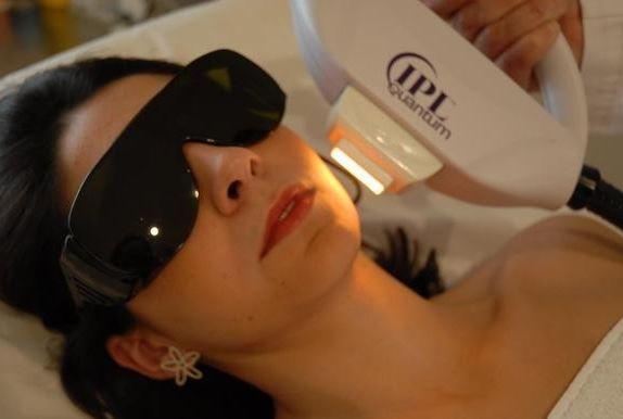 IPL o luz intensa pulsada es otro de los tratamientos no invasivos para rejuvenecimiento facial