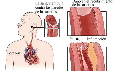 como daña la presion arterial alta a las arterias