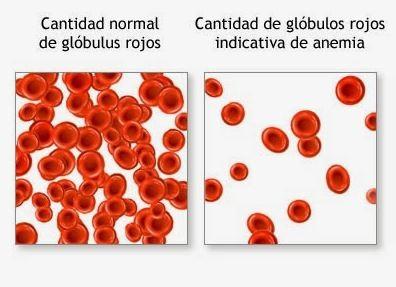 con la anemia los globulos rojos cambian de tamano y color