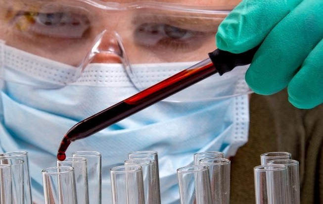 con la prueba de CBC se analizan los resultados de la sangre