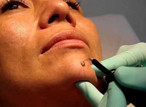 electrocauterización como tratamiento de remocion quirurgica para eliminar verrugas