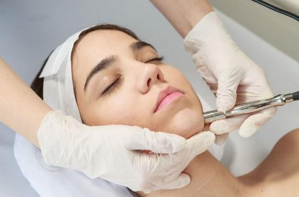 la dermoabrasion es otra de las opciones para el rejuvenecimiento facial sin cirugia