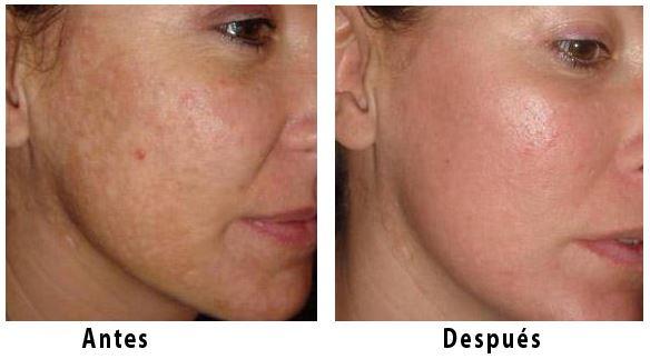 resultados con un laser ablativo para rejuvenecer la cara