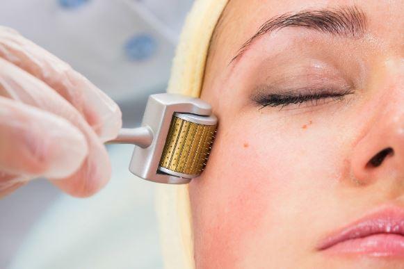 tratamiento facial con dermaroller