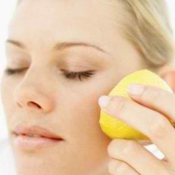 el limon ayuda a disminuir el dolor provocado por una quemadura en la piel