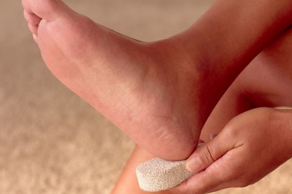 la piedra pomez es el mejor remedio para los talones secos y agrietados