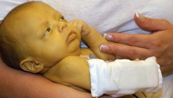 el bebe debe aprender a procesar la bilirrubina por si mismo