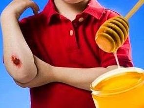gracias a la miel se pueden desinfectar las heridas perfectamente