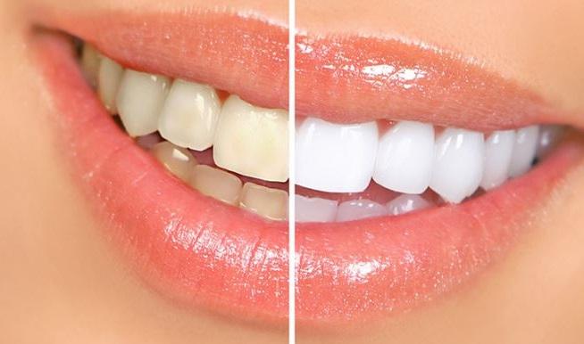 trucos para blanquear los dientes