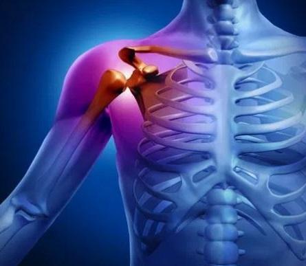 las luxaciones o dislocaciones es una de las lesiones mas frecuentes cuando se practica algun deporte