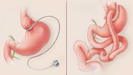el bypass gastrico es una de las tecnicas quirurgicas utilizadas para tratar la obesidad morbida