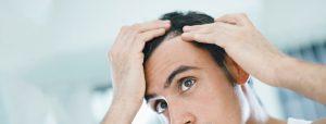tratamientos y causas para la alopecia areata