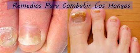 Remedios naturales para eliminar hongos en las unas de los pies