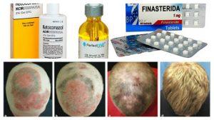 cura de la alopecia areata