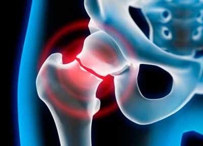la osteoporosis puede provocar fracturas de huesos muy facilmente