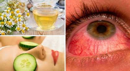 los mejores remedios caseros para la conjuntivitis