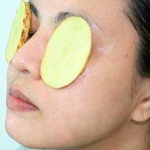 ponerse una rodaja de patata en el ojo afectado por conjuntivitis funciona muy bien