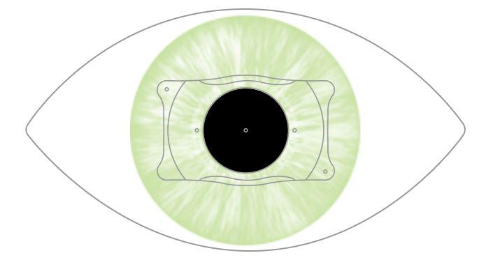 ventajas de implantar una lente intraocular