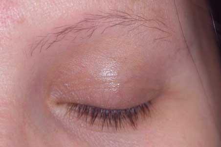 con este tipo de alopecia se puede perder pelo en las cejas y otras partes del cuerpo