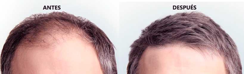 antes y despues de un microinjerto capilar