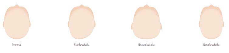 diferencias entre plafiocefalia, braquicefalia y escafocefalia