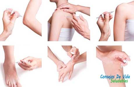 aplicar ozono en distintas partes del cuerpo