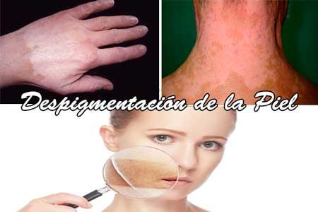 Despigmentacion de la Piel