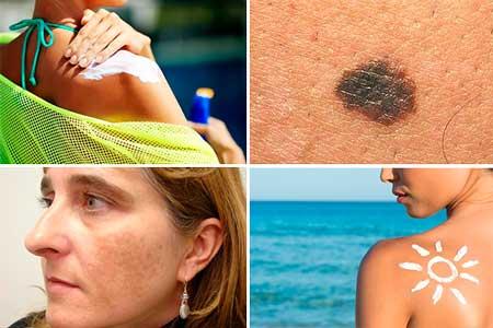 causas que provocan la despigmentacion de la piel