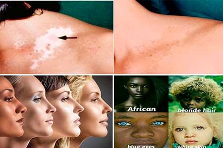 en que consiste la despigmentacion de la piel