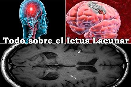 todo sobre el ictus lacunar y las partes del cerebro a las que afecta
