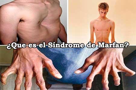 que es el sindrome de marfan