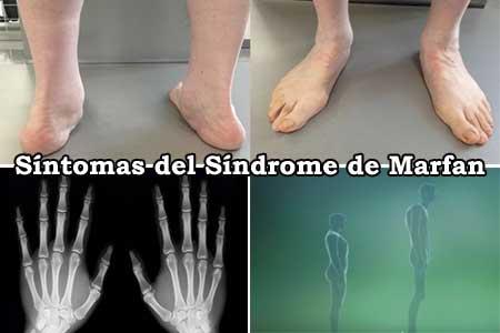 sintomas y signos que presenta el sindrome de marfan