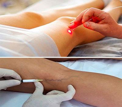 imagenes de un laser y escleroterapia para tratar las varices en el embarazo