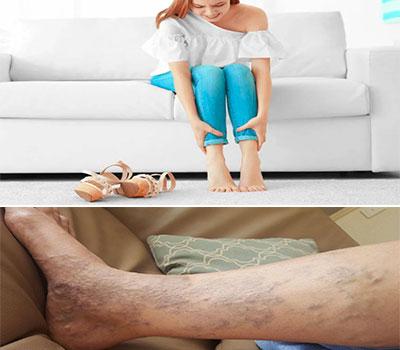pierna llena de varices y mujer embarazada tocandose las piernas