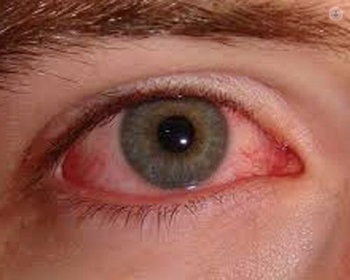 causas que provocan que el ojo se seque