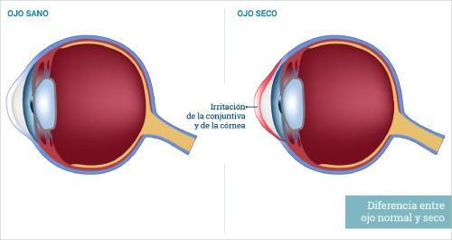 diferencia entre ojo sano y ojo seco