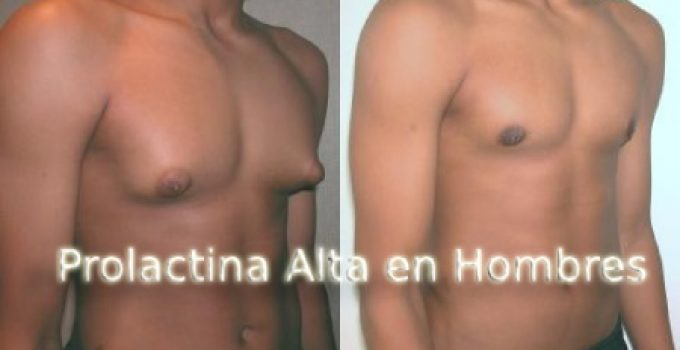 prolactina alta en hombres